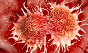 علت اصلی سرطان زیست یازدهم